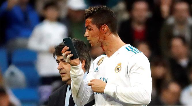 Ronaldo kanlar içinde kaldı, telefona sarıldı!