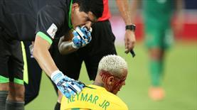 Neymar kanlar içinde!